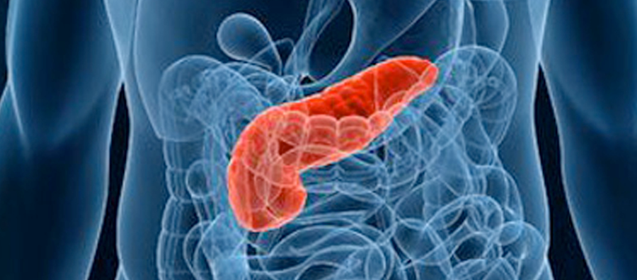 LINK DISCOVERED BETWEEN PANCREATIC CANCER AND GUM DISEASE
