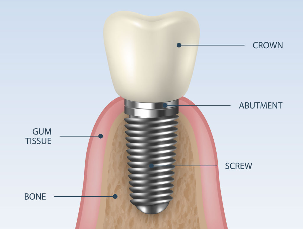 dental implants costa rica structure