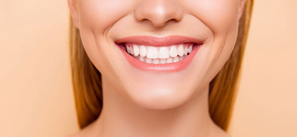 Carillas Dentales sonrisa
