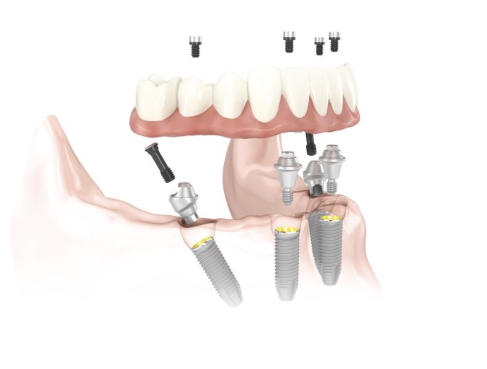 describe all in four costa rica  with graphic. dental implants procedure.
